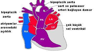 hipoplastik_sendrom_clip_image001_0000