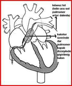 pulmoner_darlik_clip_image002_0005